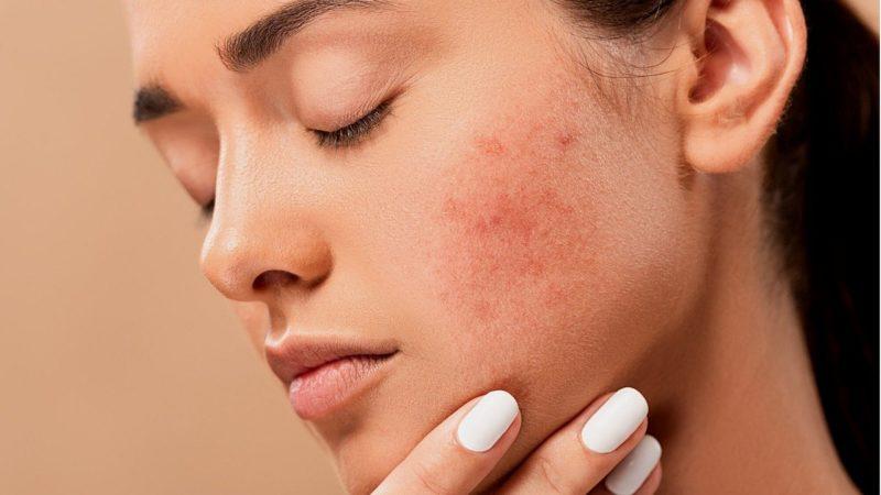 L'acné, comment s'en débarrasser ?